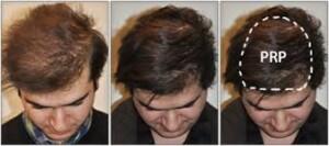 Ενδυνάμωση Μαλλιών με μεσοθεραπεία