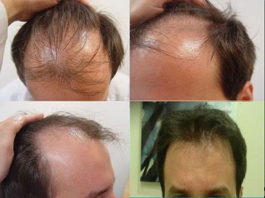 Κρόταφοι-Α&Β ζώνη - PSHair - Hair Loss Clinic by PSMEDICAL - Μεταμόσχευση Μαλλιών FUE