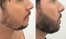 Αποκατάσταση γένια - PSHair - Hair Loss Clinic by PSMEDICAL - Μεταμόσχευση Μαλλιών FUE