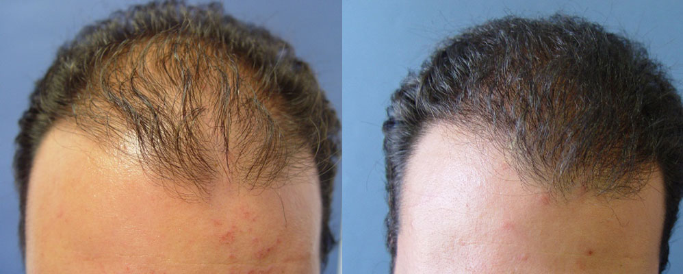 PSHair - Hair Loss Clinic by PSMEDICAL - Μεταμόσχευση Μαλλιών FUE