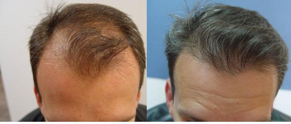 Κρόταφοι & Α ζώνη - PSHair - Hair Loss Clinic by PSMEDICAL - Μεταμόσχευση Μαλλιών FUE
